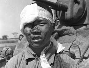 美拍49年内战时国军伤员