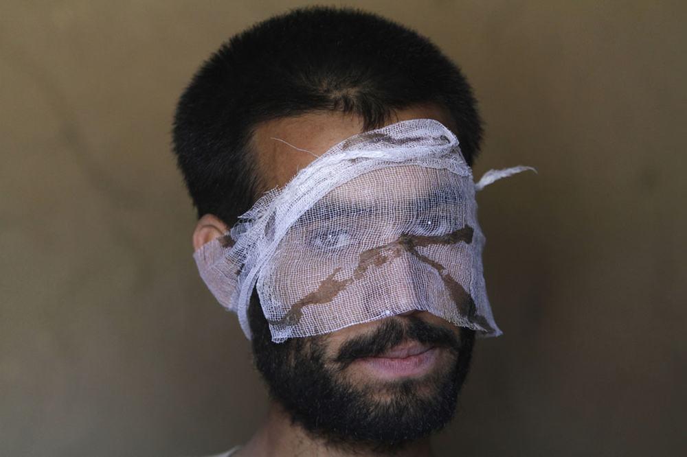 环球网国际军情中心2012年6月4日消息:战争都是残酷的,尽管名义上阿富汗战争已经结束,但实际中阿富汗仍处于极度的动荡与不稳定中。塔利班和各派反对势力都在进行着各种各样的破坏活动,人民群众的生活依然是处于水深火热之中。而美军在阿富汗战争中也付出了惨重的代价,许多士兵在战争中丢掉了性命,花费了大量时间和金钱的军事行动也没有给阿富汗带来和平与稳定。一下这组图片摄于当今的阿富汗社会,或许人们应该重新思考这场战争究竟带来了什么。