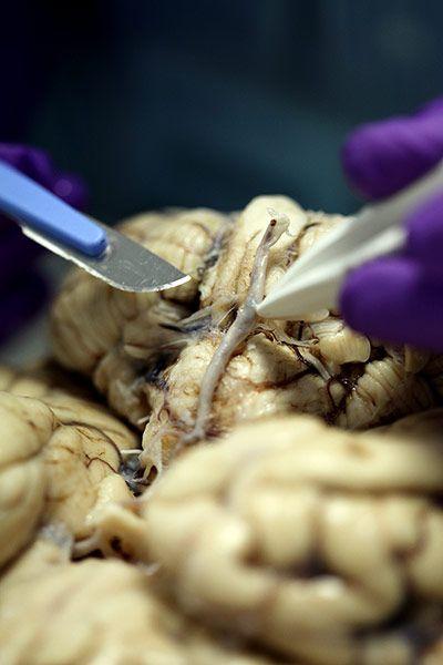 全过程 解剖/揭秘大脑解剖全过程(3/7)