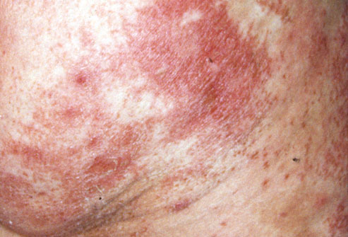 臀部和舌头上的鳞屑疹 臀部和舌头上的鳞屑疹 幸运的是,坏死松解性图片