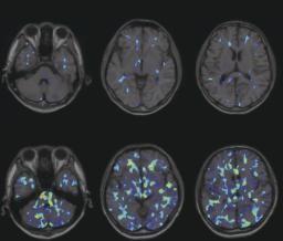 日本发现:自闭症系大脑免疫细胞活动频繁所致。