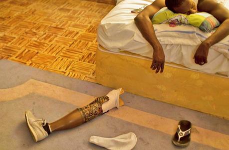 生命的绽放:假肢上的舞者