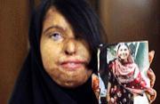 被硫酸毁容的巴基斯坦妇女儿童