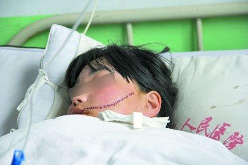 花季少女惨遭同学小刀毁容 伤口长达13厘米(图)