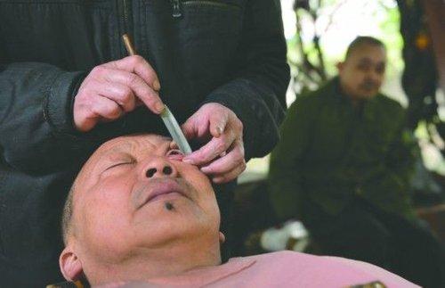 古老技艺剃刀洗眼睛再现成都 被指不卫生