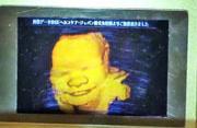 日推出胎儿超声波3D全息图打印术
