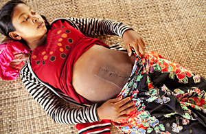 纪实摄影:柬埔寨新生儿