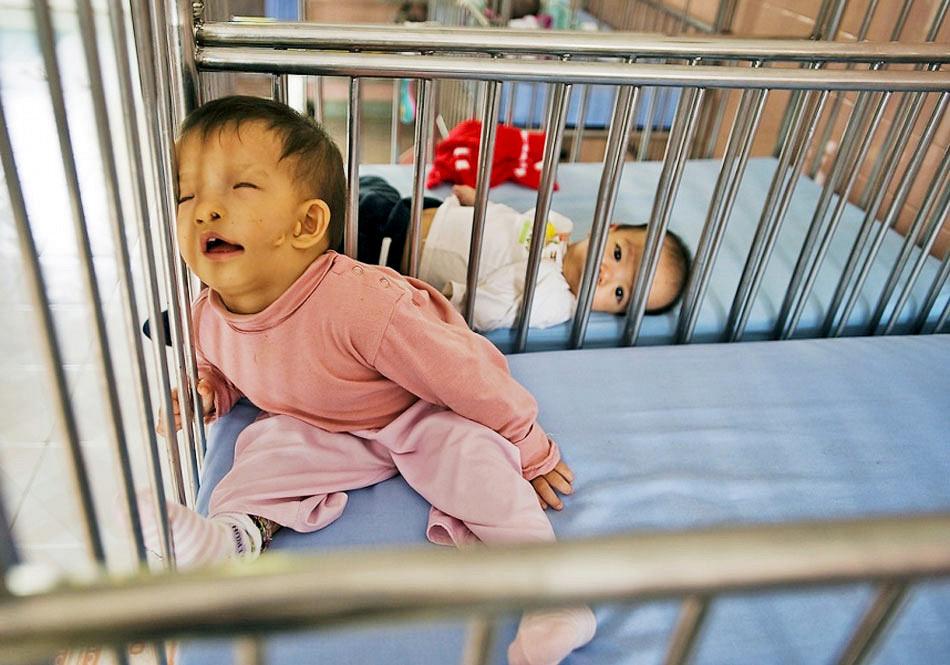"""越战遗毒:""""橙剂""""阴影下的越南儿童"""
