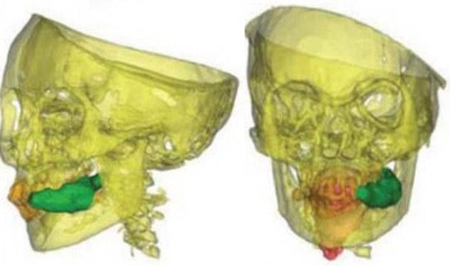 X光扫描印加冰处女木乃伊:强行服毒品献祭(图) - 陈老师 - wzcxj0910 的博客