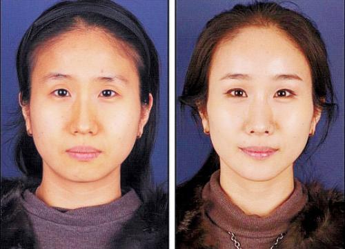 韩国网站刊出的手术前(左)后对比图。
