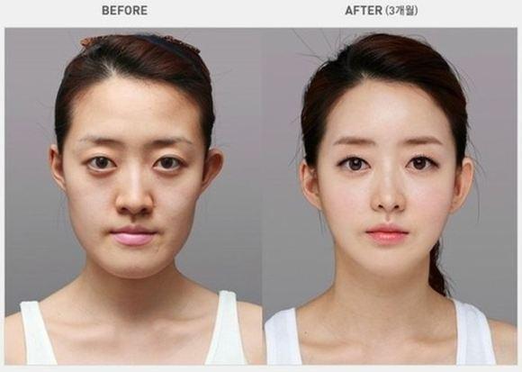 韩国人整容前后对比