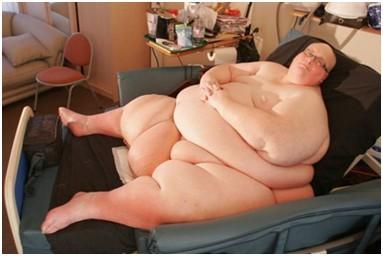 英国全球最胖男子成功瘦身后成功收获爱情