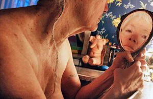 纪实摄影:硬化症患者生存实录