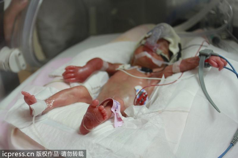 湖南长沙新生罕见袖珍女婴 仅成人巴掌大