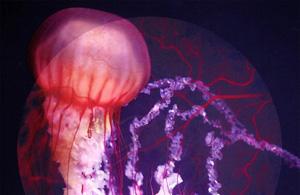 观念摄影:血管造影