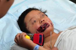 河北一3岁男童遭3条猛犬撕咬遍体鳞伤