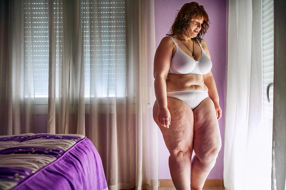 蜕变:西班牙女子手术减肥