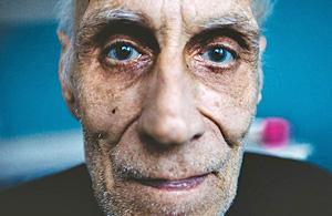纪实摄影:乌克兰结核病患