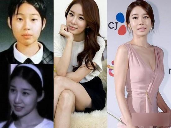 韩国明星李多海整容_曝韩国女星整容变脸对比照:李多海变化惊人_博览_环球网