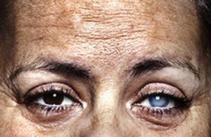 人像摄影:盲人肖像