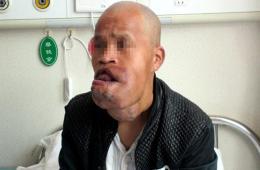 西安一男子面部长瘤大如排球