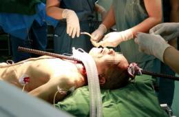 西安工人横遭钢筋穿颅 救治18天侥幸生还