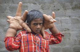 """印度男孩患""""巨手症"""" 手比头大"""