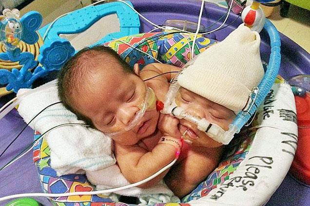 美连体女婴共用肝脏肠道欲做分离手术