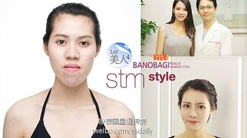 3名泰国女生入选韩国整容节目 整容后华丽逆袭