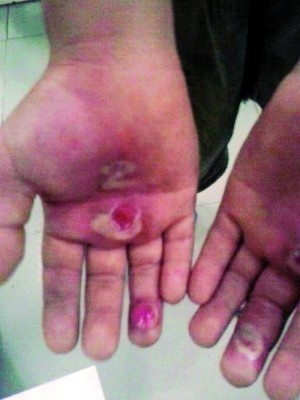 小学生遭学长用烟头烫伤双手 拖鞋抽打下体(图)