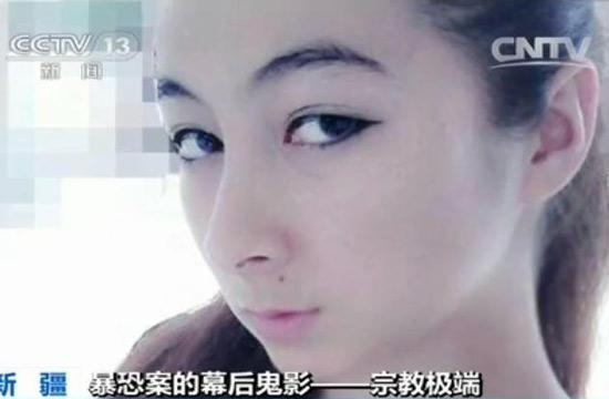 新疆女学生被暴恐份子炸断腿