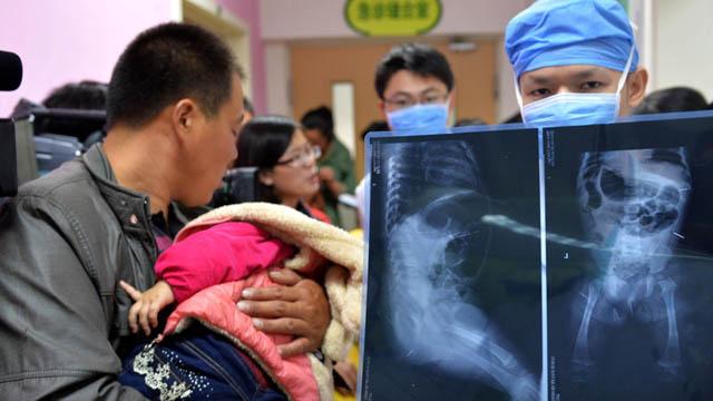 1月女童腹部被扎12钢针 北京儿童医院就医父亲全程怀抱