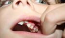 女童嘴中取202颗牙