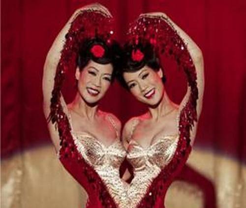 惊奇:国外连体双胞胎奇异人生
