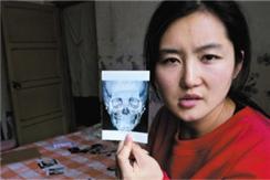 山西女孩赴韩整容 12项手术无一成功