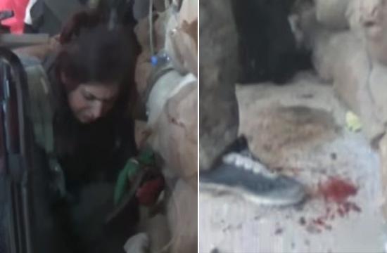 库尔德女战士轻伤不下火线