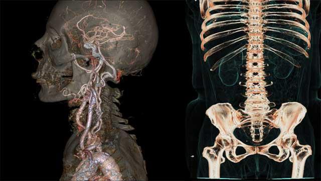 心脏原来是这么跳动的 3D版和动态CT图像问世
