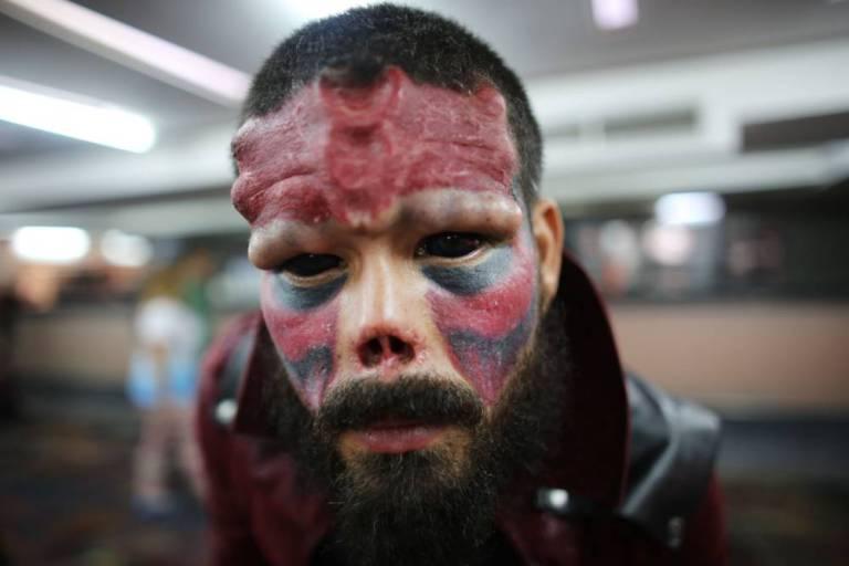 委内瑞拉男子走火入魔 为成动漫人物切除鼻子