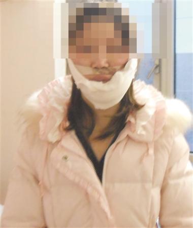 """女子赴韩国整形失败整成了""""永远的歪嘴"""""""