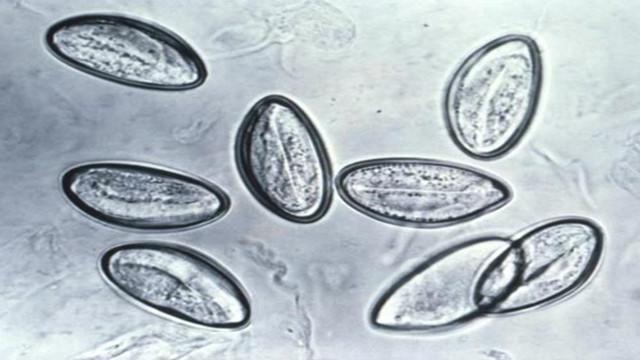 人体10大寄生虫真面目