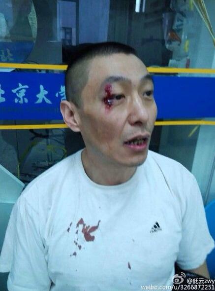 北京积水潭医院否认医生殴打患者 称是阻挡患者袭击