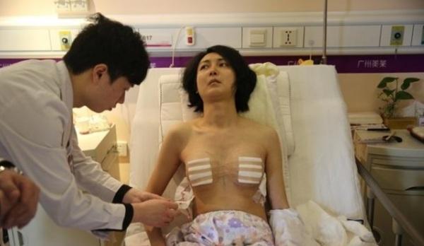 道德模范刘霆变性成女人 隆胸手术过程曝光