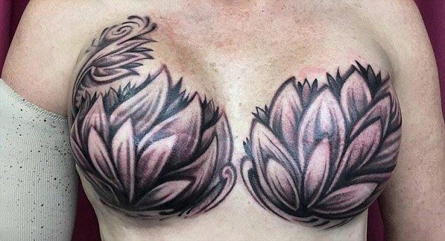 英纹身师设计花朵刺青遮乳房伤疤