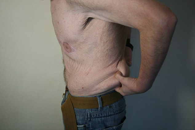 英国男子暴瘦后只得移除松弛皮肤