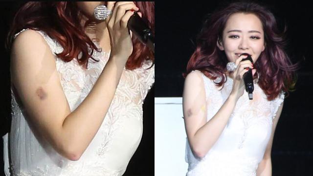 张靓颖演唱会摔下舞台 受伤仍登台表演
