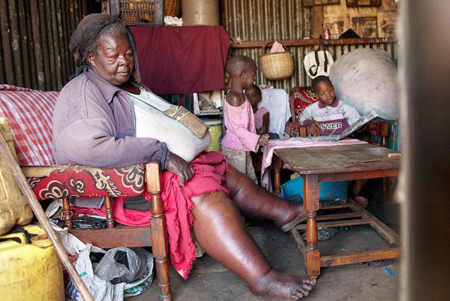 直击非洲:全球肥胖问题日益加剧