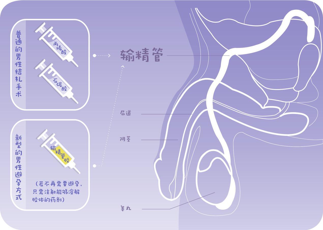 粘羽器内部结构图纸