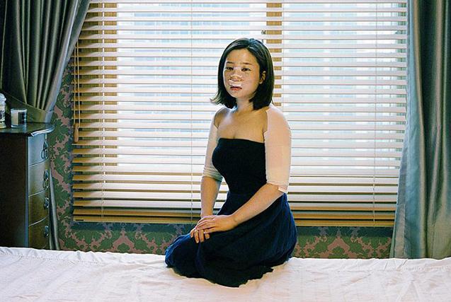韩摄影师镜头记录患者整容术后的生活