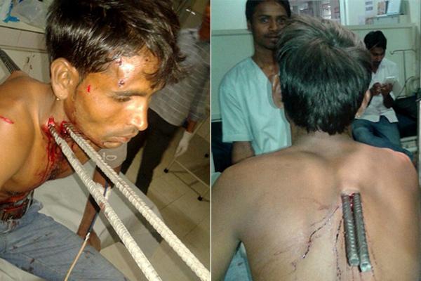 印男子骑车撞上卡车被铁棍刺穿身体