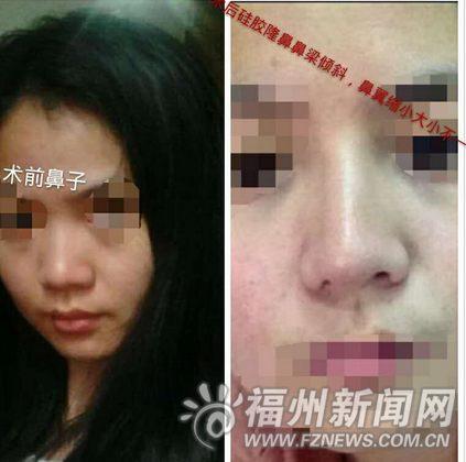 妙龄女整容后鼻孔一大一小 医院称无法修复(图)